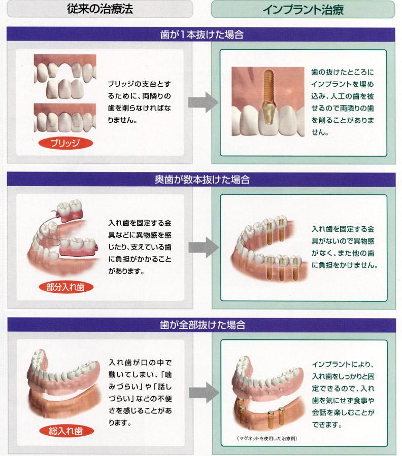 愛知県 岩倉市 歯科 歯医者 中井歯科医院